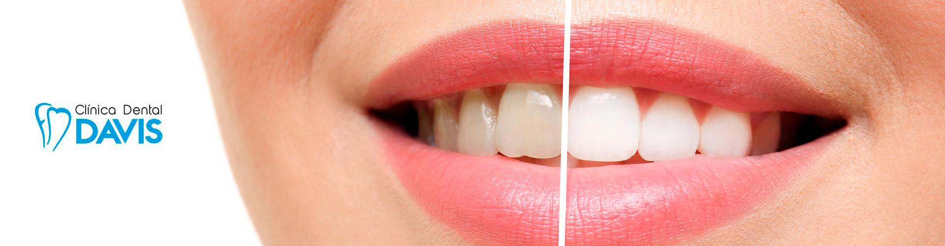 estetica-dental-blanqueamiento-avenida-del-puerto-valencia