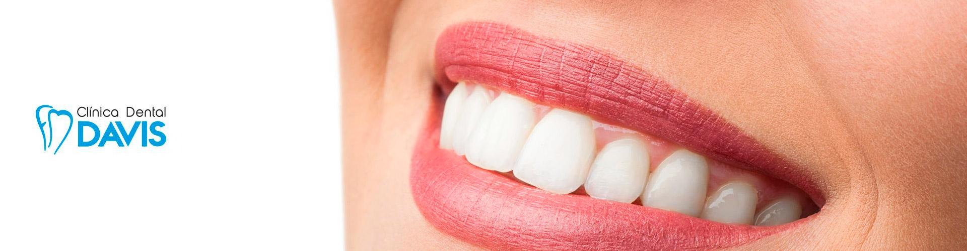 implantes-dentales-avenida-del-puerto-valencia